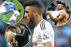Neil Taylor Left Looking Like He`s Fought Mike Tyson after Collision with Kompany