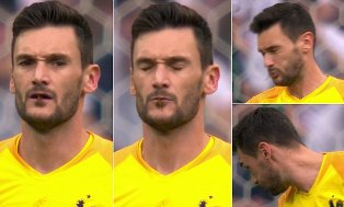 Lloris almost Eats a Dragonfly after it is Shown Flying into His Mouth on Slo-mo Replay