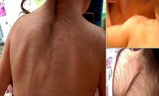 20 Anak Tumbuh Rambut Diseluruh Badan di Spanyol